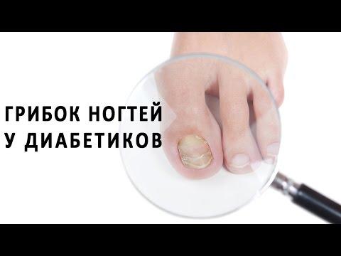 Die chinesischen Präparate von gribka auf den Nägeln