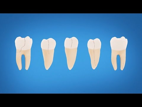 Understanding Cracked Tooth Treatment and Symptoms