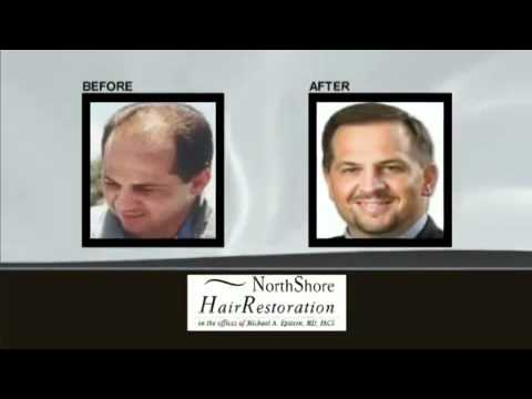 Hair Restoration with Chicago Plastic Surgeon