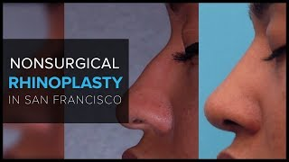 Non-Surgical Rhinoplasty in San Francisco