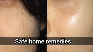 Skin Brightening DIYs _ Makes your Skin Glow Like Crazy! _ SuperWowStyle