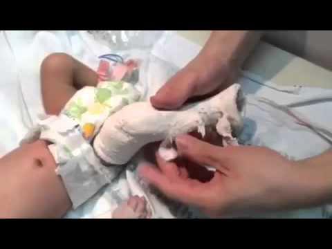 รองเท้าสำหรับภาพถ่ายทารก valgus เท้า
