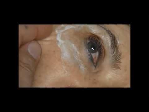 Plexr treatment - the blepharoplasty revolution.