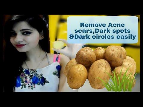 , title : 'Remove Acne Scars,Dark spots,Black Spots & Dark Circles NaturallyllAMAZING YOU'