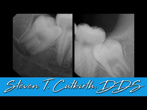 Improve Your Wisdom Teeth Extraction Technique - Dental Minute with Steven T. Cutbirth, DDS