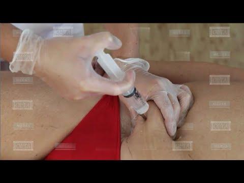 Дневной крем от морщин акулий жир ультра-лифтинг для лица