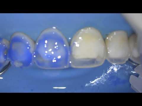 Адгезивная подготовка вестибулярной стенки зуба