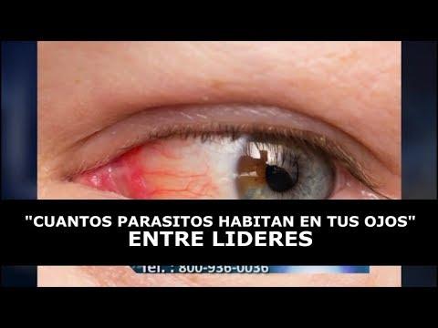 Como librarse del parásito del ojo