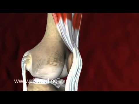 Osteochondrose Rippenbogen