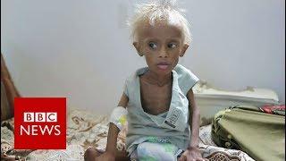 Yemen war: The boy who shocked ther world - BBC News