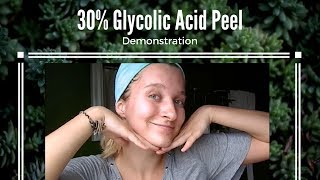 ♡ At Home 30% Glycolic Acid Peel Tutorial ♡