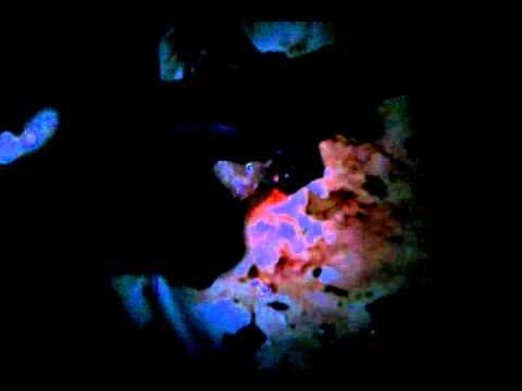 Kung ang bata Giardia habang tinitingnan nito