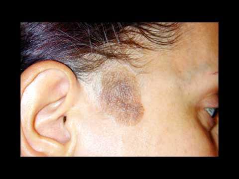 Come liberarsi da pigmentary nota su una faccia alluomo