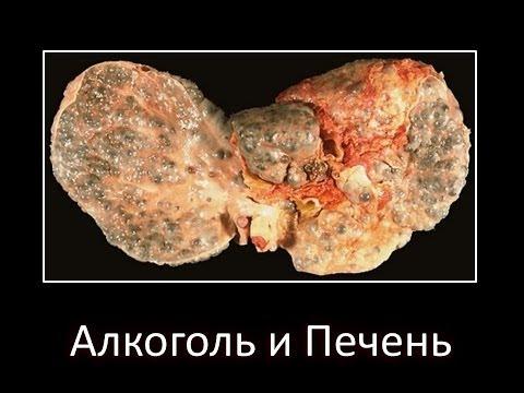 Анализы на гепатиты и вич в астрахани