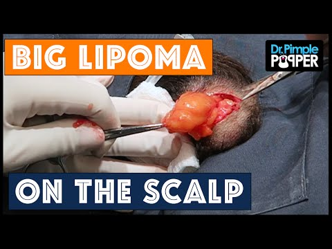 A Big Movable Lipoma on the Scalp!