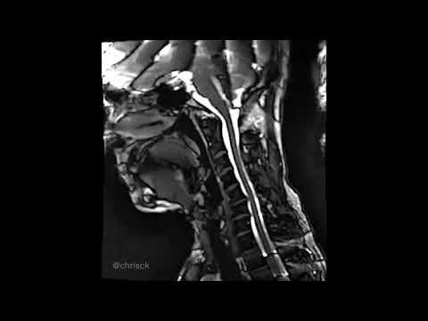 Боль в суставе ноги при ходьбе