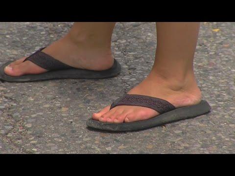 Dangers of flip flops