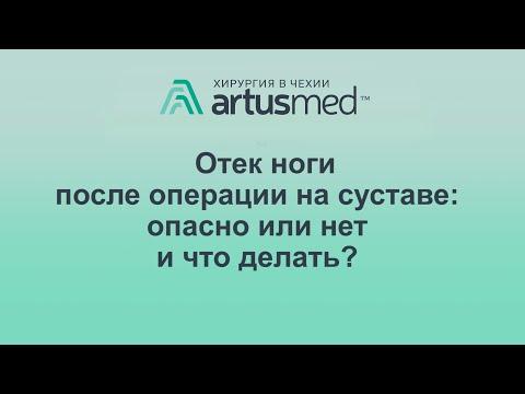 Отек после эндопротезирования сустава, мой личный пример. Причины и лечение и методы профилактики.