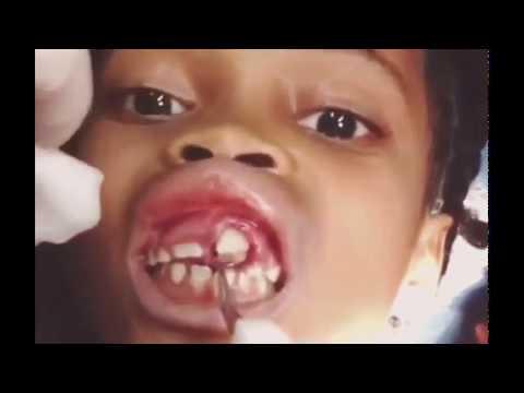 การวิเคราะห์ของแอนติบอดีรวม Giardia ในเด็ก