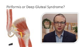 Piriformis Syndrome or Deep Gluteal Syndrome?