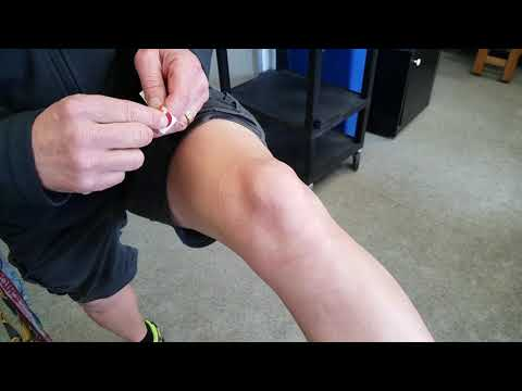 Hogyan lehet elkerülni a csípőízület ízületi gyulladását