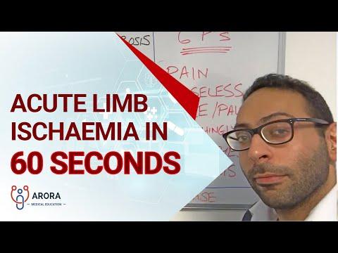 Vérzés a szemben magas vérnyomás kezeléssel