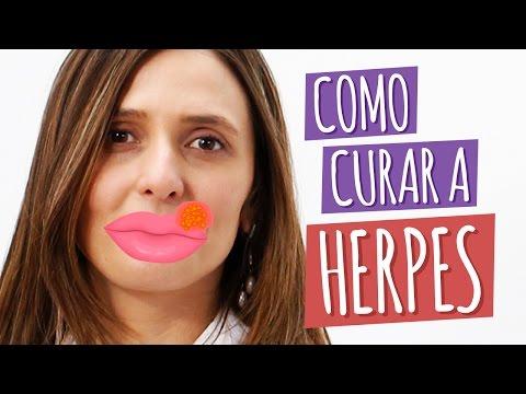 Imagem ilustrativa do vídeo: Herpes - Alimentação para curar a ferida e prevenir a infecção