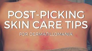Post-Picking Skin Care   Skin Care for Dermatillomania