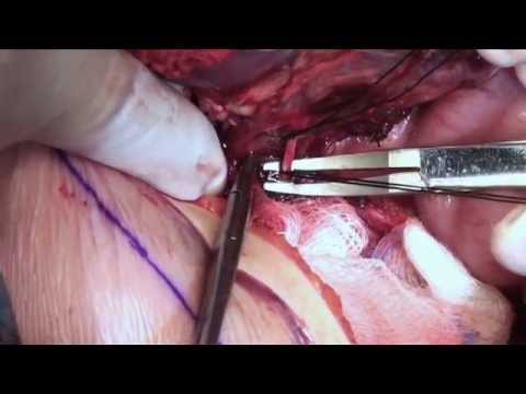 Removal of Wilms Tumor