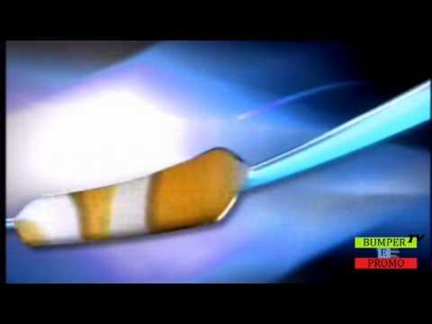 Come togliere il grasso a un inguine