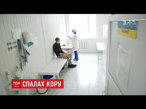 З початку квітня кількість хворих на кір у Дніпрі виросла до 80 осіб
