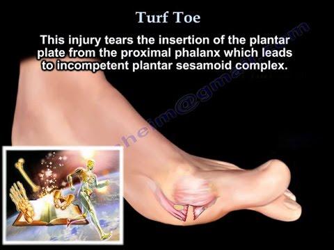 กระดูกนิ้วเท้าใหญ่ไม่เจ็บ