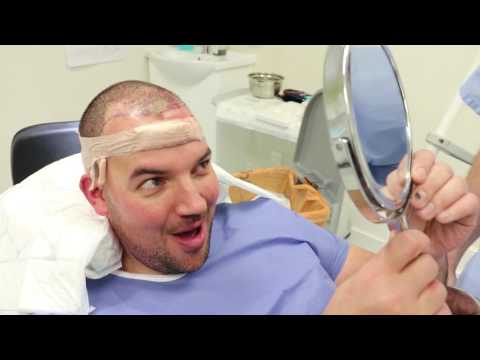 FUE Hair Transplant Patient Video Diary - Op Day