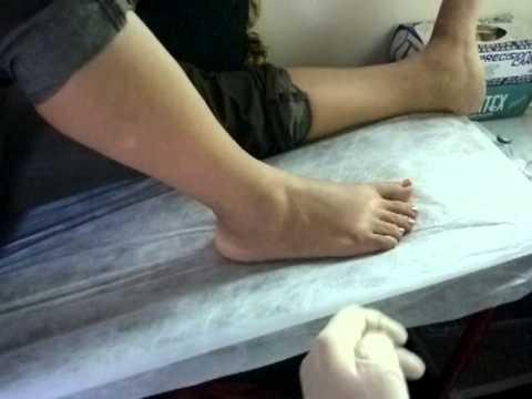 Tratamiento de la cervical popular tratamiento de la enfermedad degenerativa del disco