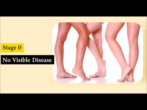 Gamba varicosity sintomi