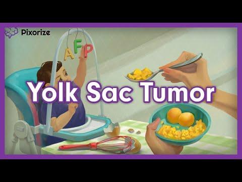 Uterine cancer epidemiology
