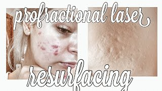 profractional laser resurfacing | ice pick scar & box car scar treatment