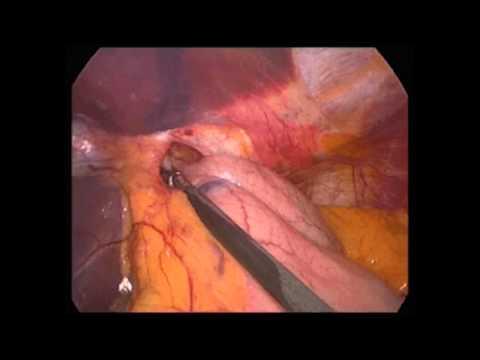 Die Laserabtragung der vaskulösen Sternchen in wolgograde