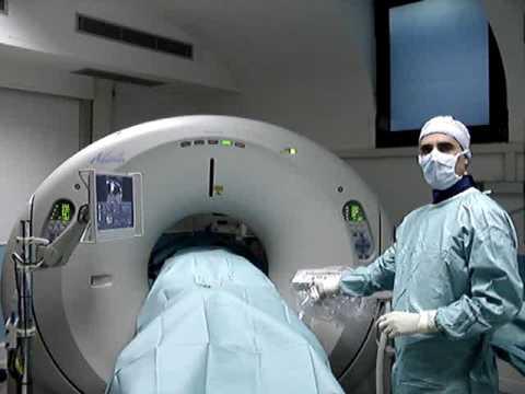 Osteocondrosi della lombare pellicola a raggi x