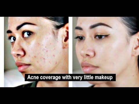 Mask ng sarsang ng pigment spots