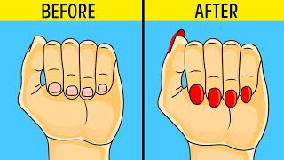 How to Stop biting your nails!