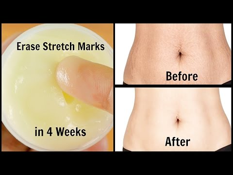 Video Erase Stretch Marks in 4 Weeks | Quick & Easy | 100% Works