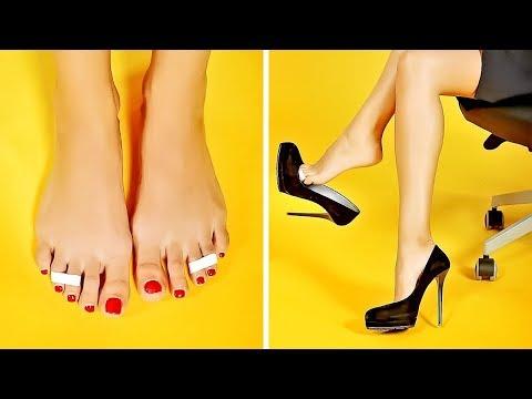 Artrite di pietra su dita del piede
