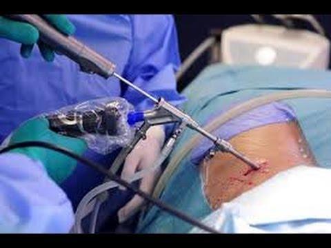 Артрозо артрит коленных суставов код по мкб 10