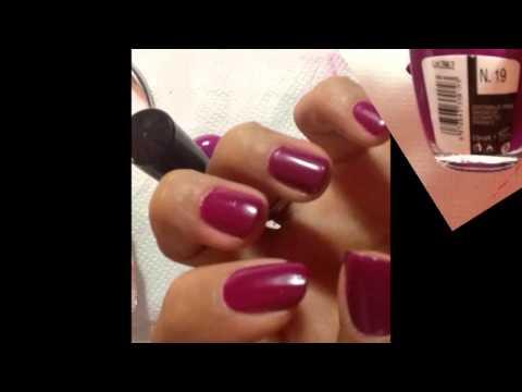 Le microorganisme végétal des ongles à bras les ongles sécartent des doigts
