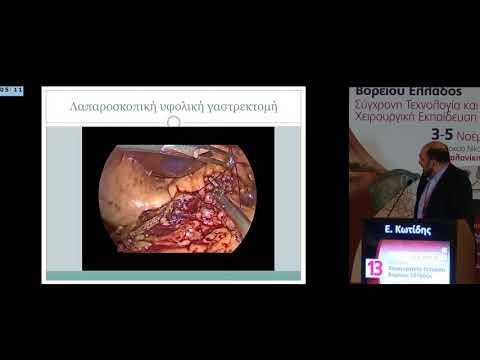 Κωτίδης Ε - Η θέση της νέας τεχνολογίας λαπαροσκοπική ρομποτική χειρουργική στον καρκίνο