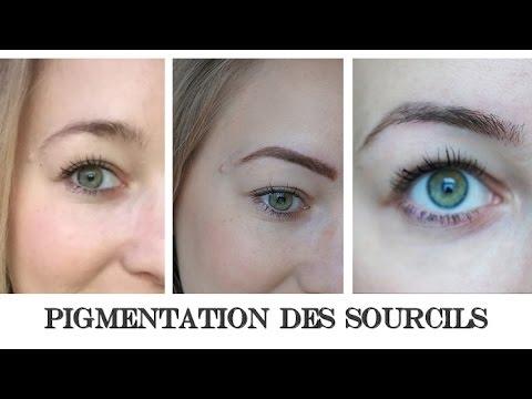 La pigmentation sur la personne la défaillance hormonale
