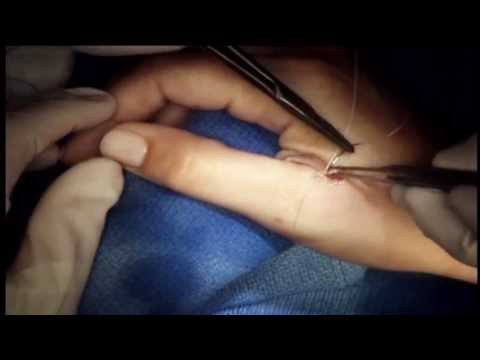 Surgical Repair of Ulnar Collateral Ligament of Thumb