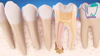 عصب کشی مجدد دندان | دندانپزشکی سیمادنت