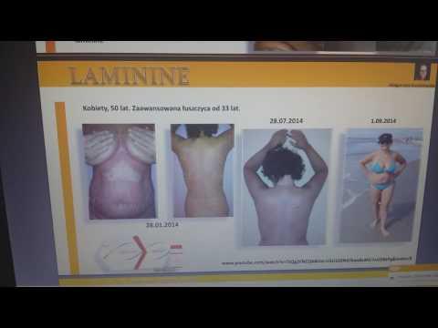 Leczyć atopowe zapalenie skóry dziecka